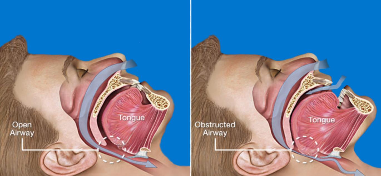 How Can You Stop Sleep Apnea? - About Sleep Apnea